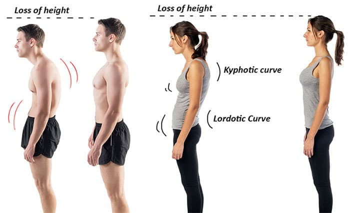 Poor posture effects on a man and woman