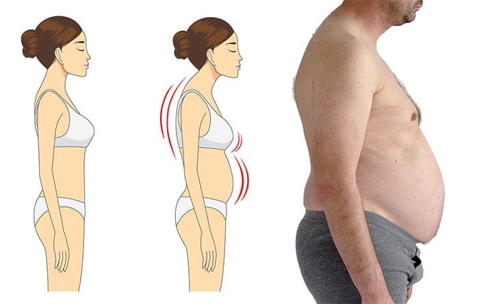 Slouching causes belly fat