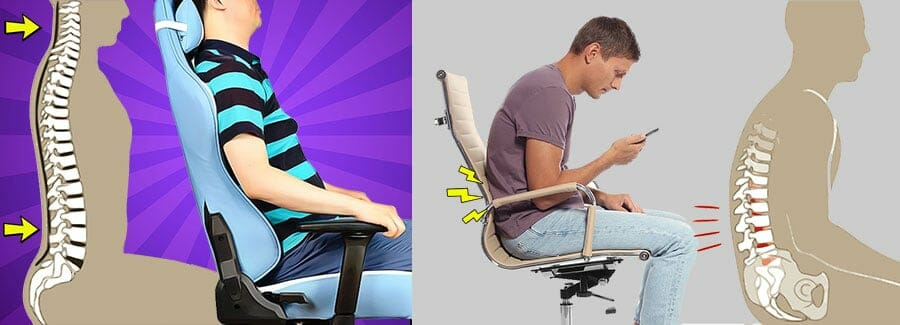 Spinal problems caused by slouching
