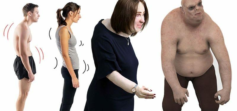 Degrading posture warning