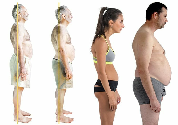 Slouching looks like a pot belly